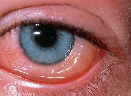 Чем промыть глаза от гноя взрослому. Воспаление глаз