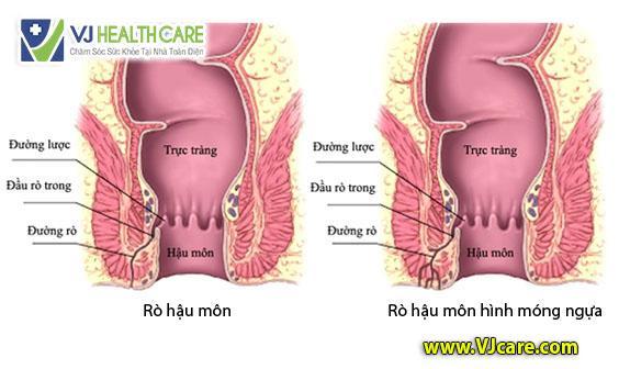 rò hậu môn hình móng ngựa ro hau mon hinh mong ngua _ ASIA Health