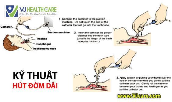 kỹ thuật hút đàm nhớt hút đàm nhớt hut dam nhot hut dam dai ASIA Health