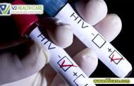 Xét nghiệm HIV bao lâu thì chính xác ?