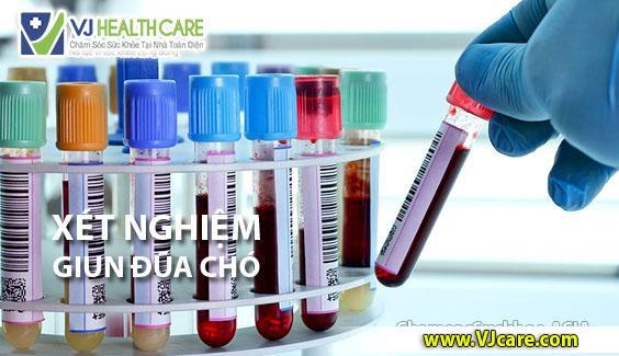 xét nghiệm giun đũa chó xét nghiệm sán chó toxocara ASIA Health