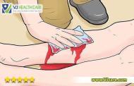 Cách cầm máu cho vết thương ai cũng cần biết