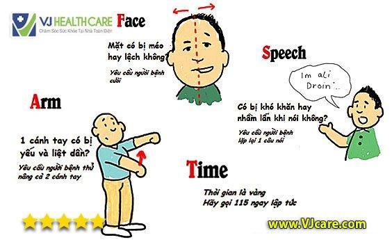 quy tắc fast nhận biết đột quỵ tai biến mạch máu não  Quy tắc F.A.S.T – Dấu hiệu nhận biết đột quỵ điển hình ai cũng cần biết quy t   c fast nh   n bi   t      t qu    tai bi   n m   ch m  u n  o