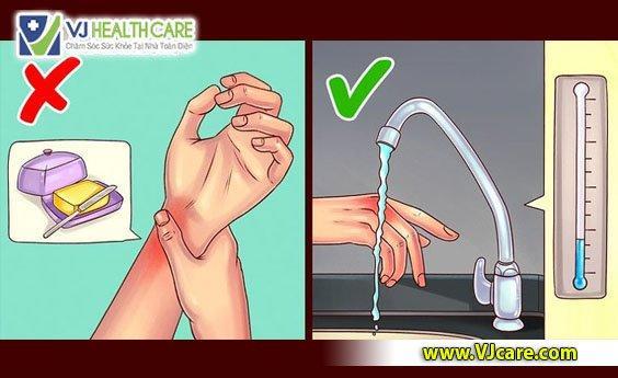 tự chữa bỏng tại nhà xử trí vết bỏng tại nhà