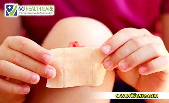 Có nên bịt kín vết thương hở không chăm sóc vết thương tại nhà