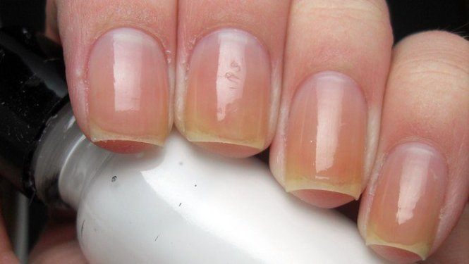Nails Nail Polish Trends Pedicure Care And Art
