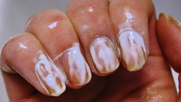 How To Get Rid Of Blue Nail Polish Stains On Nails Art Ideas