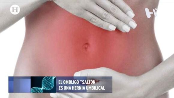 hernia sintomas