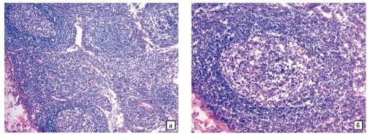 Гиперплазия лимфоидных элементов