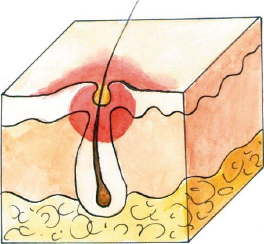 Cytomegalovírus prosztatitis