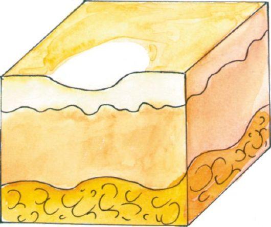 varicoză bruise photo)