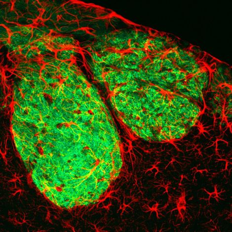 Olfactory sensory neurons (green) and astrocytes (red) and