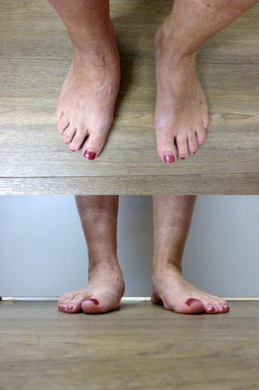 artritis oorzaken dikke voeten en