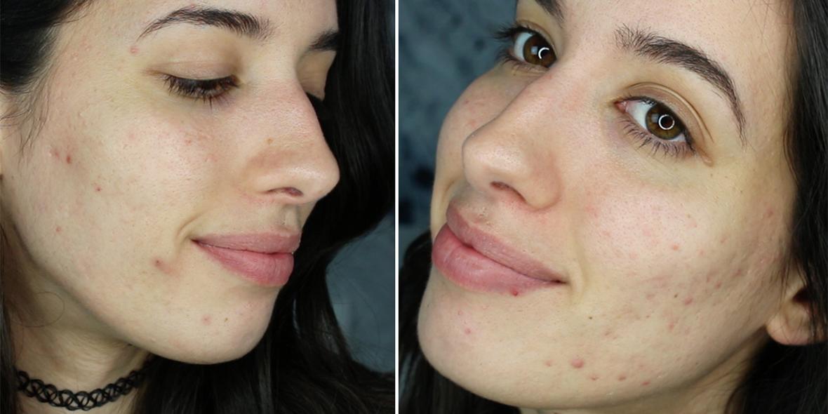 Mi historia con el acné