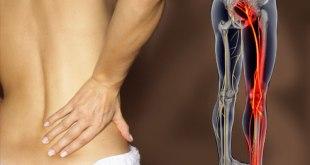 Išijas Simptomi vježbe i pravilno liječenje