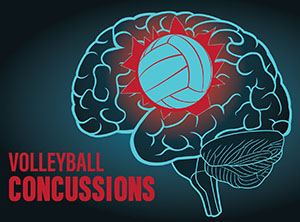 Concussions-Volleyball-Volleyball Magazine-VolleyballMag.com-CTE-head injuries