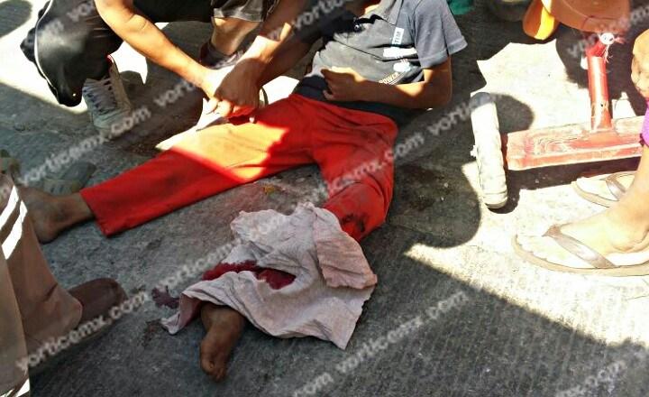 Colectivo aplasta pierna de un niño y le destroza