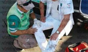 Taxista atropella a estudiante de Medicina Humana