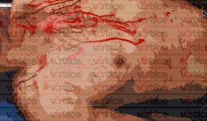 Asesinan a jovencito de un balazo en la cabeza en Las Granjas