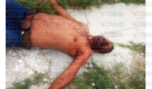 Le desfiguran el rostro a individuo tras golpiza y navajazo en la colonia La Misión