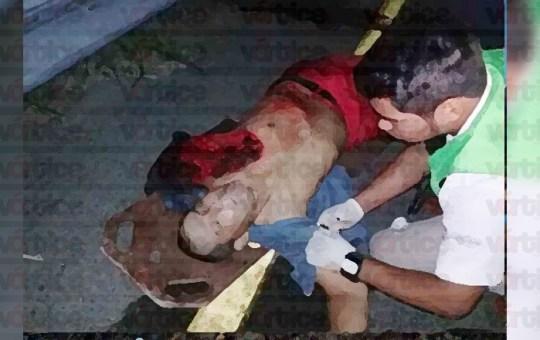 Muere pareja de motociclistas en accidente; uno perdió el brazo