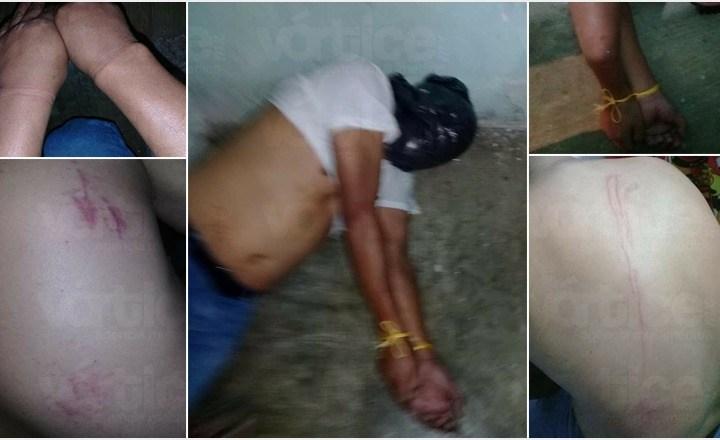 Denuncian presunta tortura dentro del CERSS 5 en San Cristóbal
