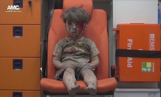 """This is Omran. He's alive. We wanted you to know."" But the mental scars will last the rest of his young life."