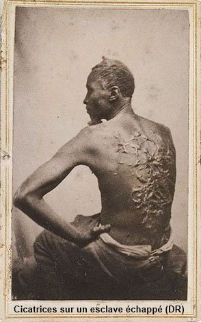 esclaves Cicatrices