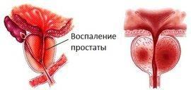 Лигирование вен полового члена при эректильной дисфункции. Перетягивание яичек шнурком для увеличения члена и улучшения потенции Минусами перевязки маточных труб считаются