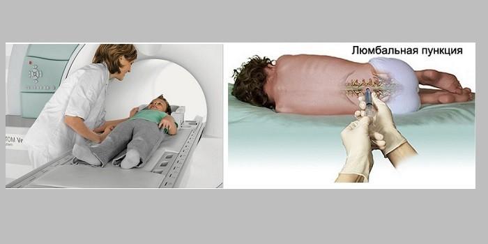 Менингит у детей: симптомы и первые признаки. Первые признаки и опасные симптомы менингита у детей, тактика терапии и профилактические мероприятия