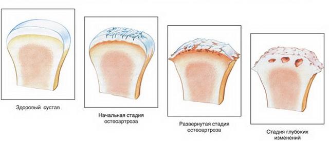 gyulladás az ízületben 3 fok rovar harapás ízületi fájdalom
