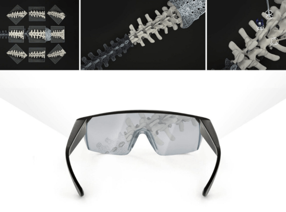 Vive X graduate Proprio lands $23m to deliver 'most transformative tech in surgery since the X-ray'