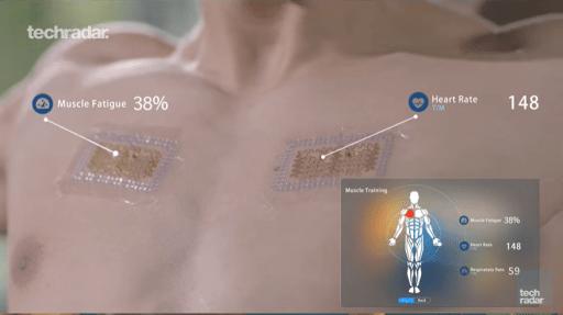 digital tattoo medical technology