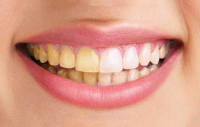 пожълтяване на зъбите