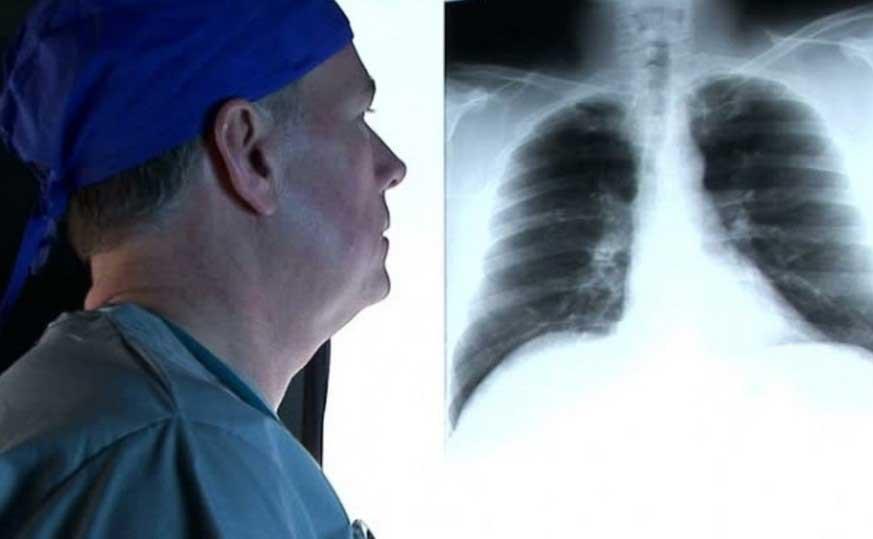 симптоми за пневмония
