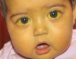 Ребенок заболел гепатитом.