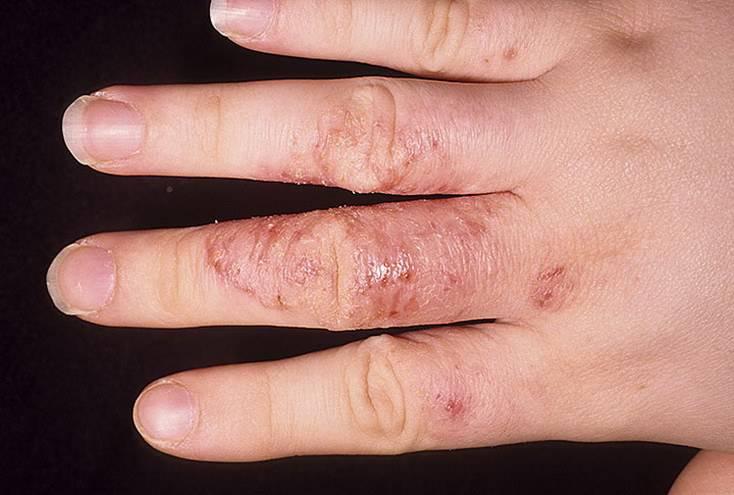 Gombaellenes prosztatitis