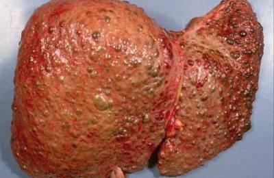 Увеличение печени и селезенки возможные заболевания и методы лечения