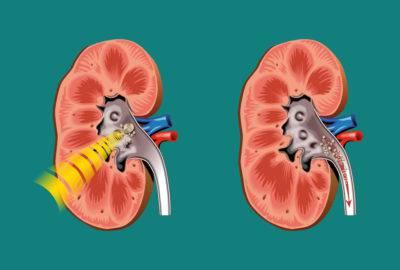 kas yra vibroakustinė hipertenzijos terapija