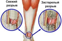Частичный разрыв ахиллова сухожилия