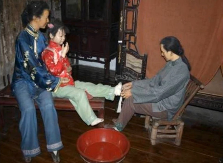 Foot binding forced women to walk with a stooped posture and their bone development suffered.
