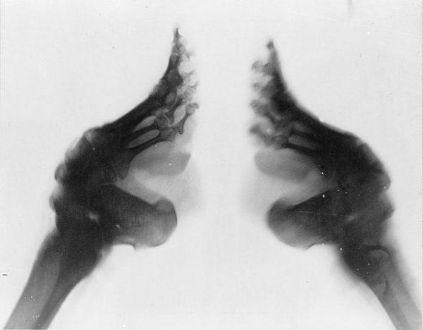 foot binding X-ray