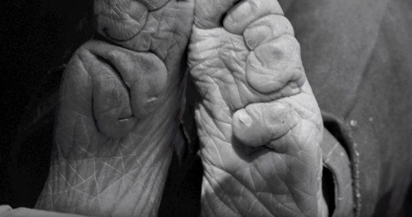 deformed feet chinese foot binding