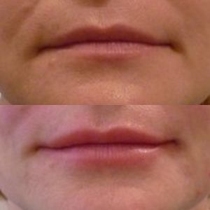 Поднятие уголков рта и создание контура губ 03.10