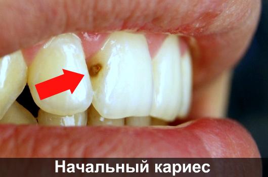 Как удалить темные пятна на зубах. Как избавиться от коричневых, желтых и черных пятен на зубах? В каких случаях отбеливание будет неэффективным