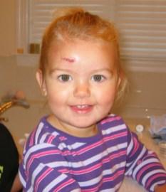 Anya-stitches