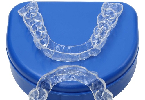 After braces teeth shift and it is time for clear retainers to keep them in place.