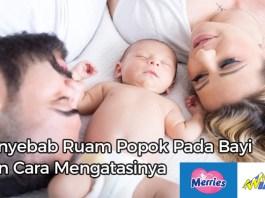 Penyebab Ruam Popok Pada Bayi Dan Cara Mengatasinya