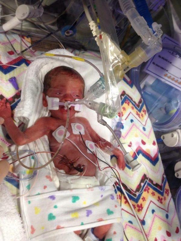 Preemie Awareness:Emma's Story by Katie Lewis