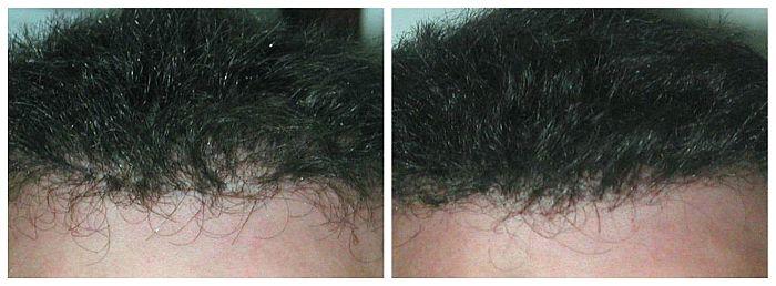 Hide hair transplant scars